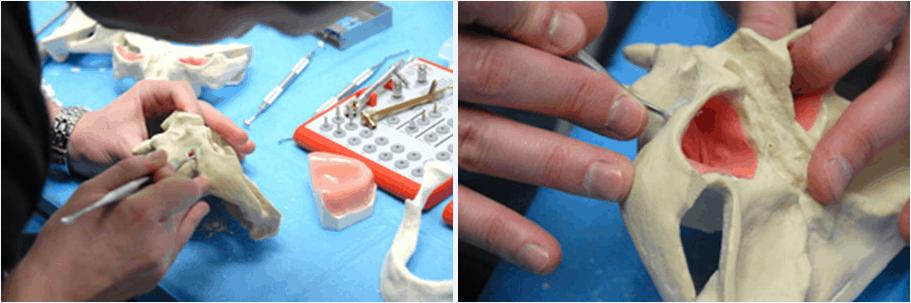 Implantes Dentales de Carga Inmediata en Valencia