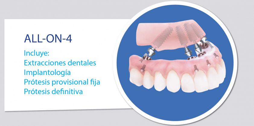 Rehabilitación dental completa ALL-ON-4