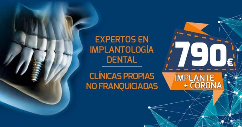 Aprovecha nuestra Promoción en Implantes Dentales