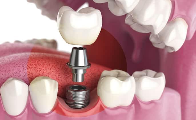 Implantología avanzada: ¿Qué es? Técnica CAD/CAM