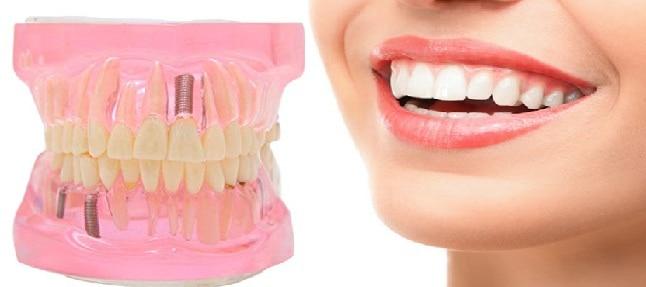 Recuperación tras un implante dental