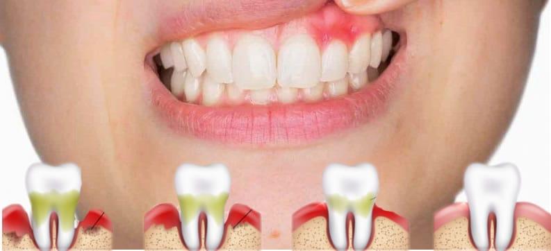 Las 10 preguntas más frecuentes en periodoncia