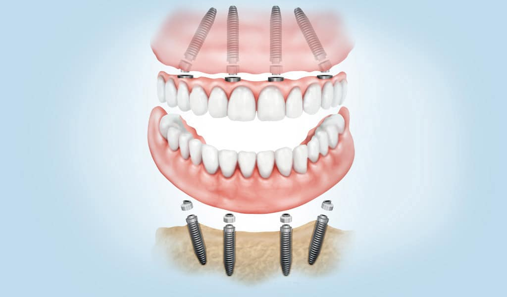 ¿Qué es la implantología dental avanzada?