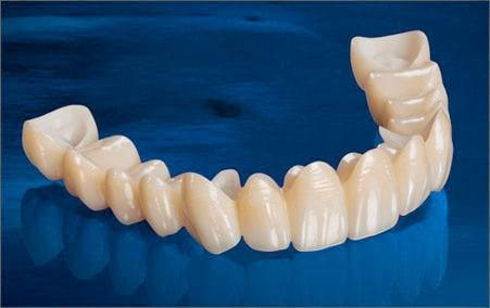 coronas de zirconio sobre dientes santident