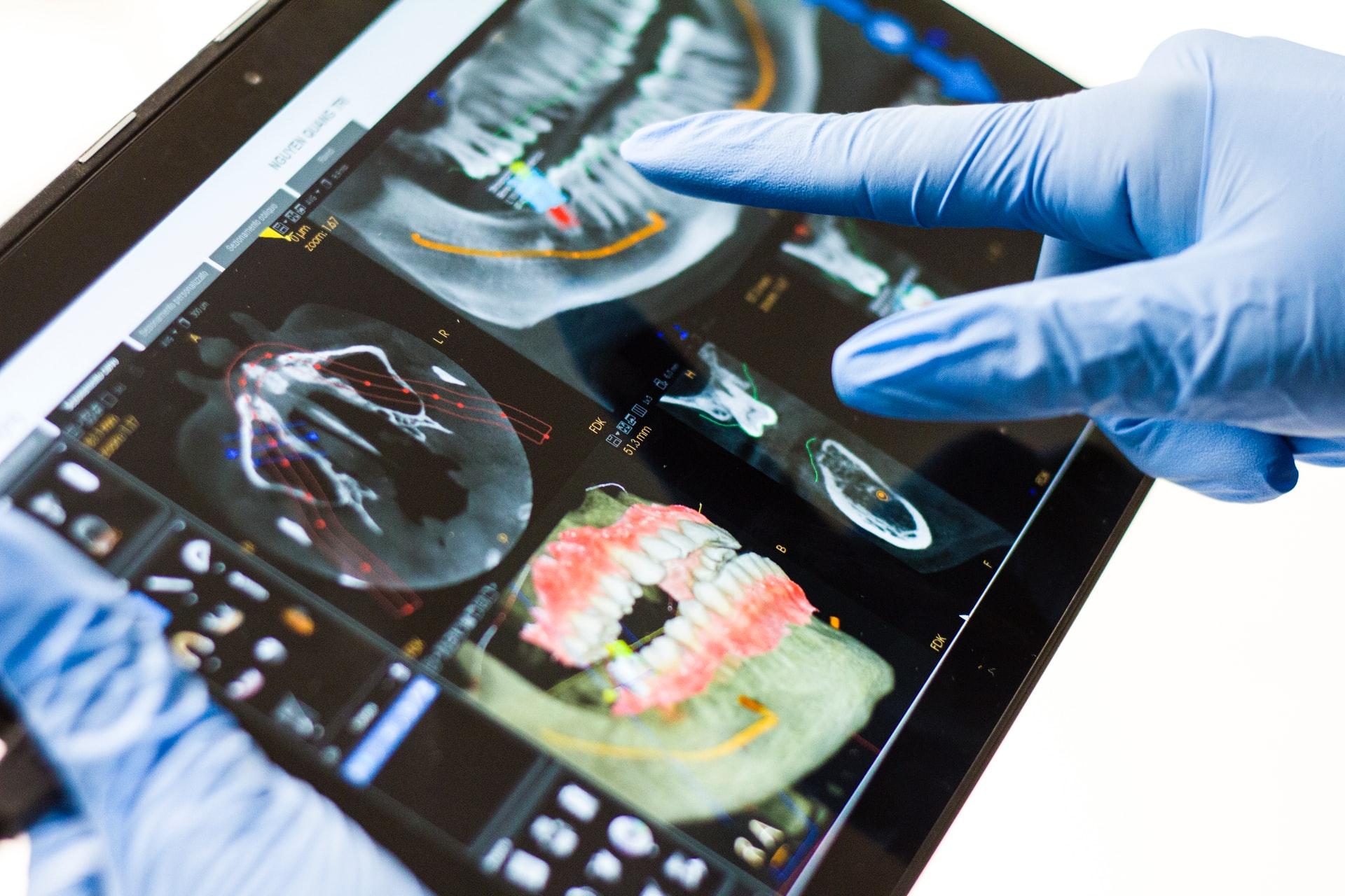 implantes dentales con carga inmediata en cheste
