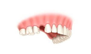 implantologia unitario corona 1