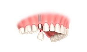 implantologia unitario corona 3