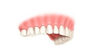 implantologia unitario corona 4
