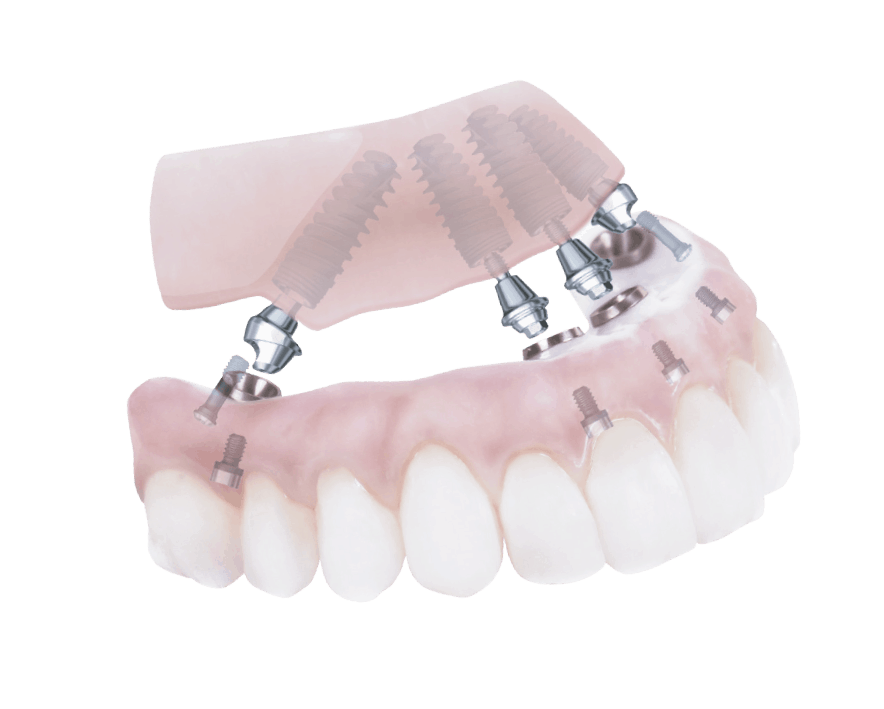 rehabilitacion completa oral all on four