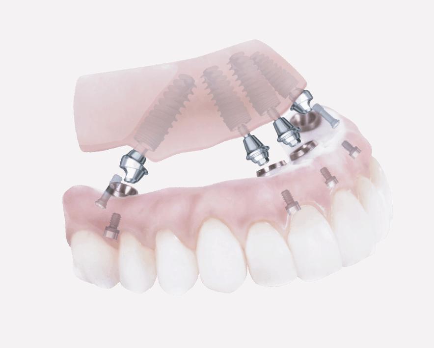 urgencias dentales cheste clinica santident