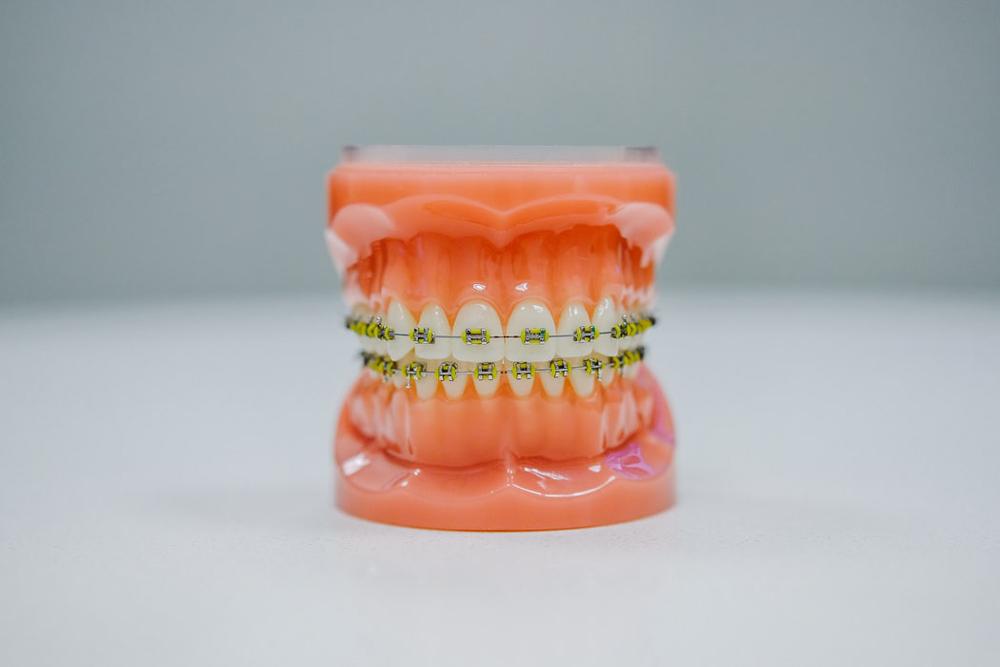 heridas-provocadas-por-la-ortodoncia - dentista de urgencias